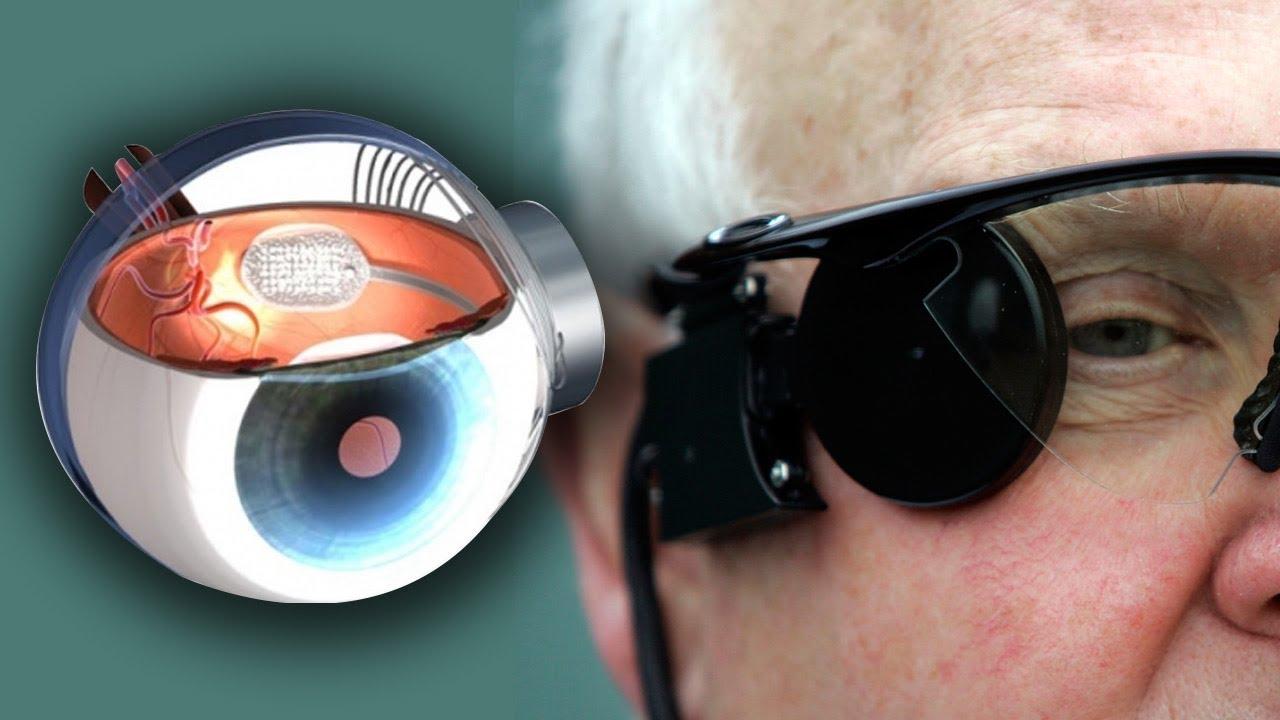 Bionic Eyes For Blindness