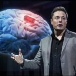 Elon Musk Has Started Up A Brain Electrode Company Called Neuralink